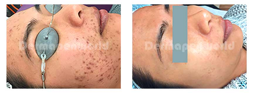 Acne scars after x 3TX