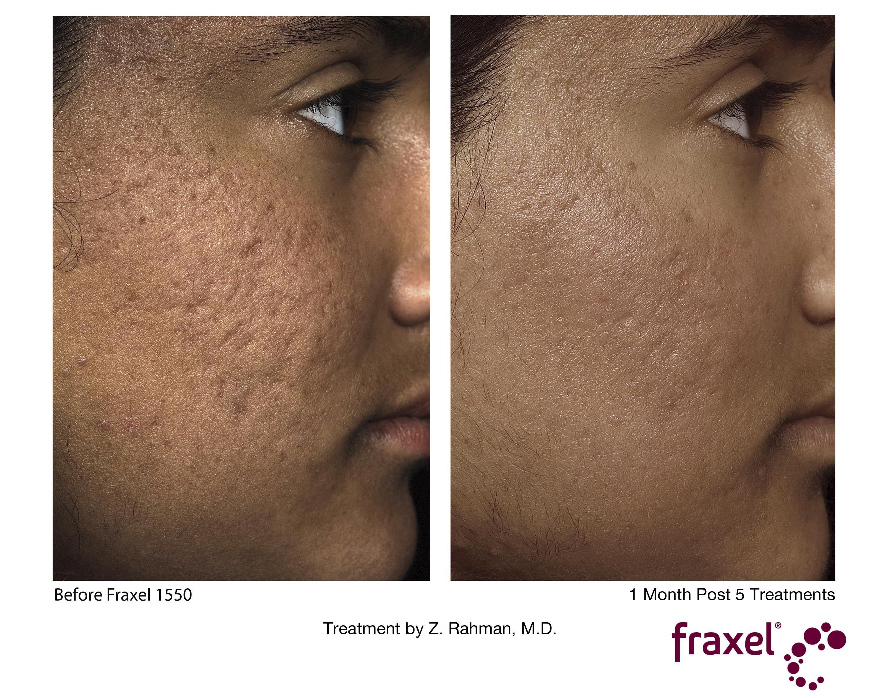 Fraxel acne scars