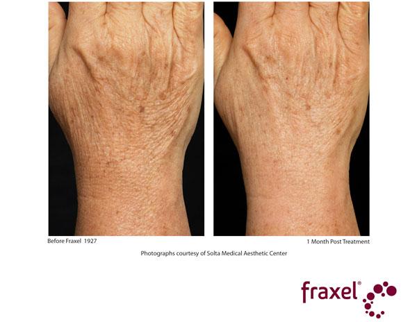 Fraxel hands