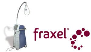 charlotte fraxel laser resurfacing