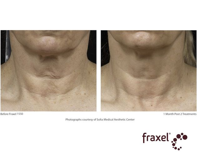 Fraxel neck