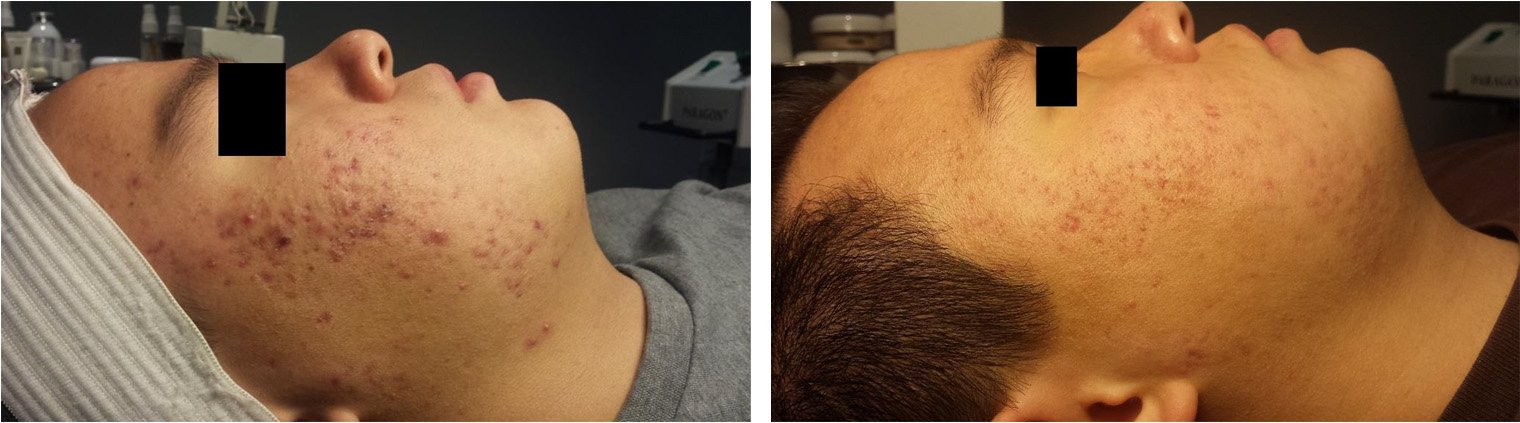 Used Celluma 2 times a week 8 weeks later