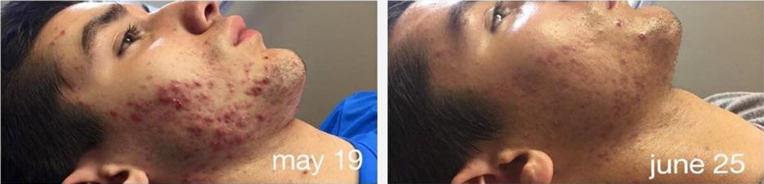 Used Celluma 2 times a week 5 weeks later
