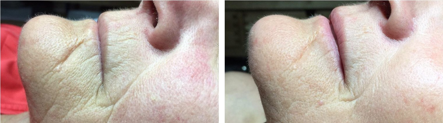 Used Celluma 2 times a week 4 weeks later