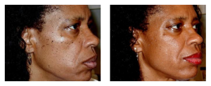 black skin fibromas removal