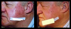 facial veins treatment