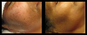 skin fibromas removal