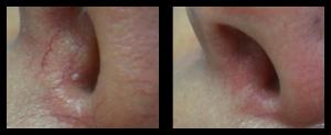 broken capillaries nose removal