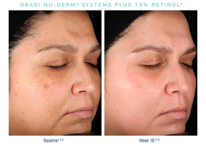 Obagi-Nu-Derm-Before-After1