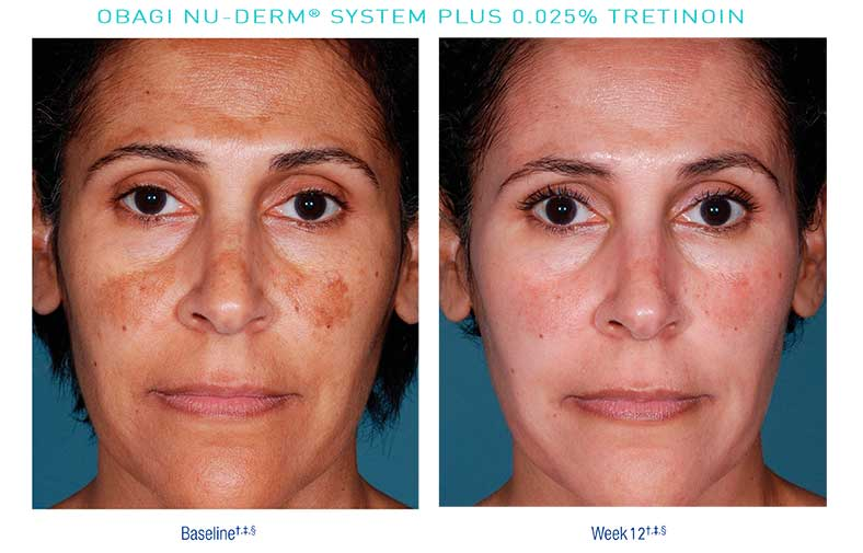 Obagi-Nu-Derm-Before-After10