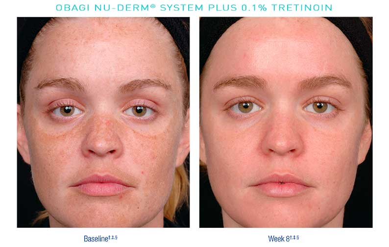 Obagi-Nu-Derm-Before-After12