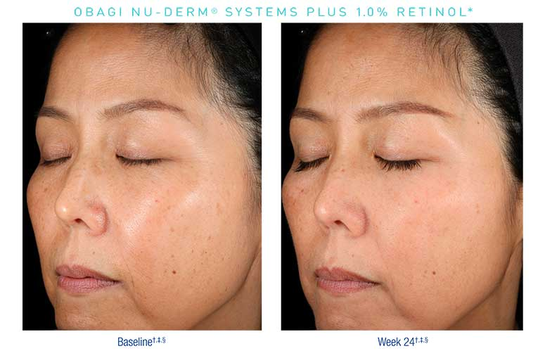 Obagi-Nu-Derm-Before-After3