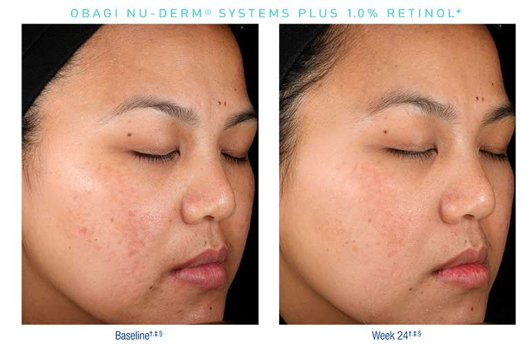 Obagi-Nu-Derm-Before-After4