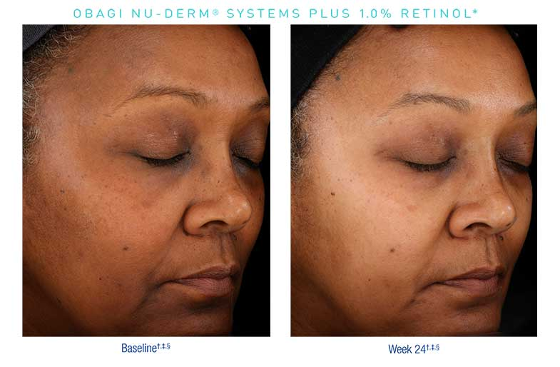 Obagi-Nu-Derm-Before-After5
