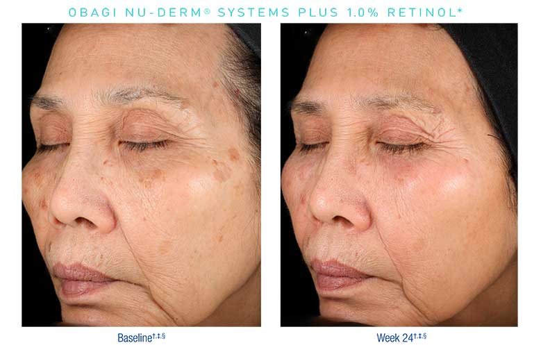Obagi-Nu-Derm-Before-After7
