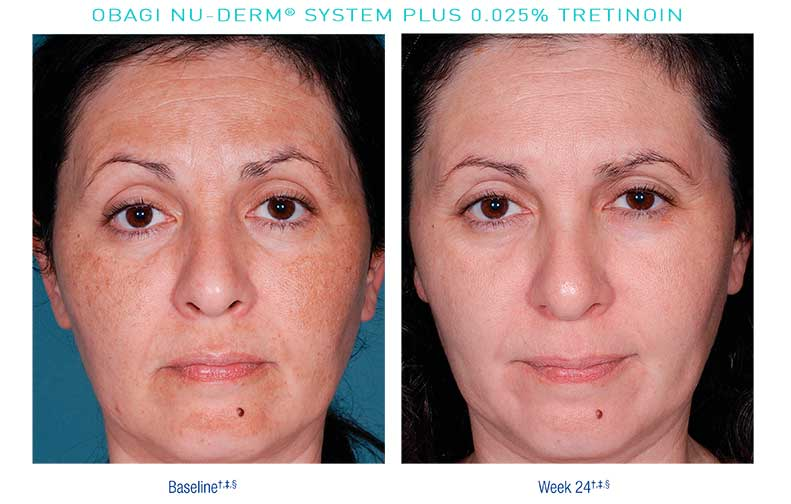 Obagi-Nu-Derm-Before-After8
