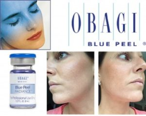 Obagi-Blue-Peel-Radiance