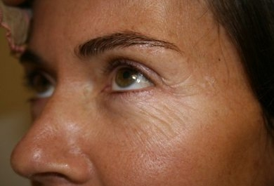 coolpeel laser before and after